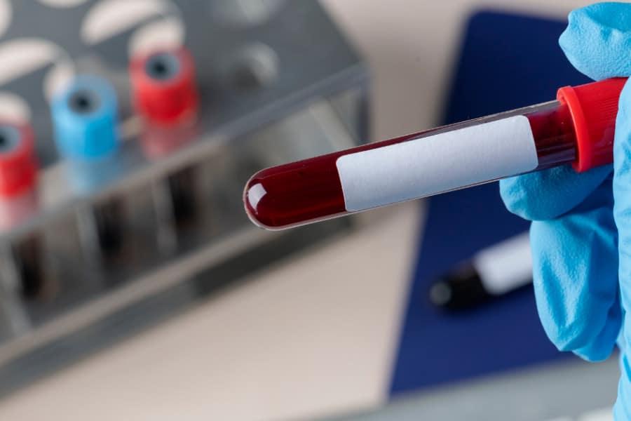 CBC Blood Test